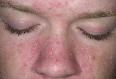 seboreinyi_dermatit-4