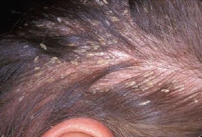 Себорейная экзема головы: лечение и симптомы