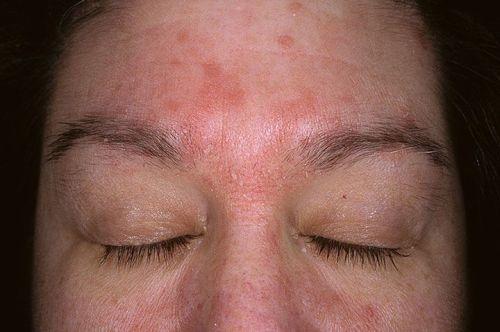 симптомы себорейного дерматита на лице