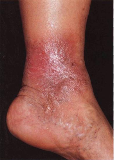 Варикозный дерматит нижних конечностей: симптомы и лечение